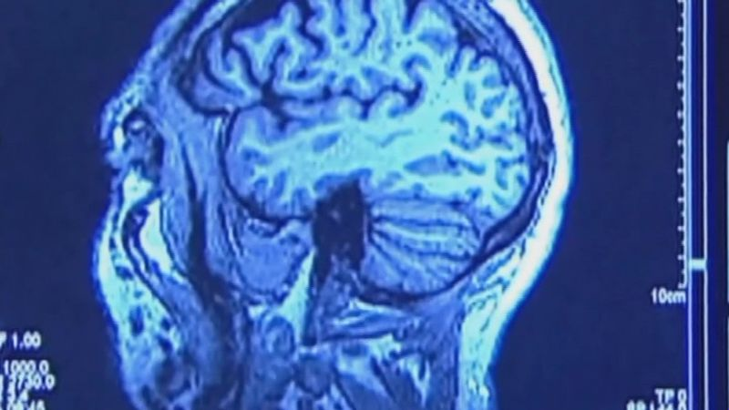 Right now, scientists still don't know what causes Alzheimer's disease and there is no known...